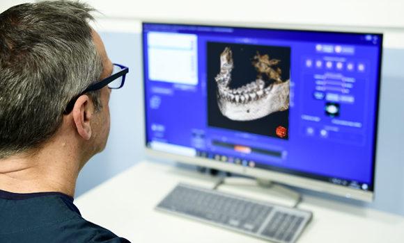studio-dentistico-ballone-vomero-napoli-colli-aminei-rx-e-diagnostica-1